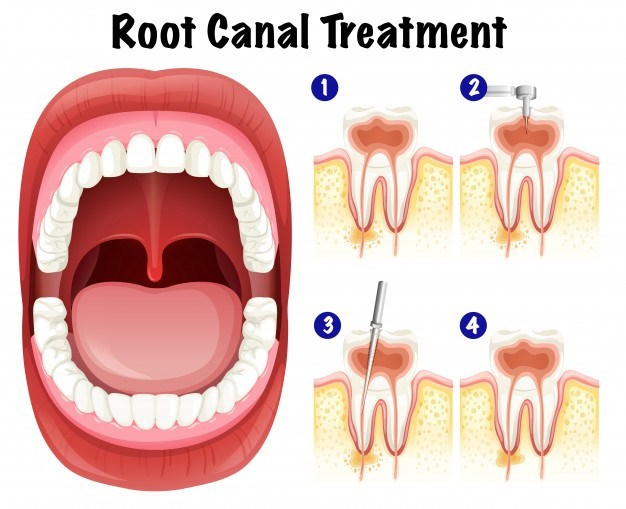 How Long Does A Root Canal Take? - Bhopal Dental Clinic
